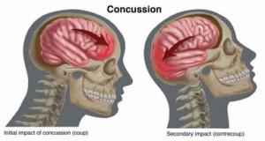 concussionMgmt
